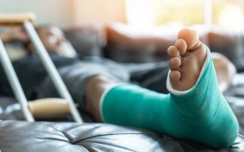 Man is cast - Experienced personal injury lawyers - Milwaukee Wisconsin - Jacobson, Schrinsky & Houck